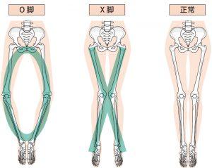 内旋型O脚とは