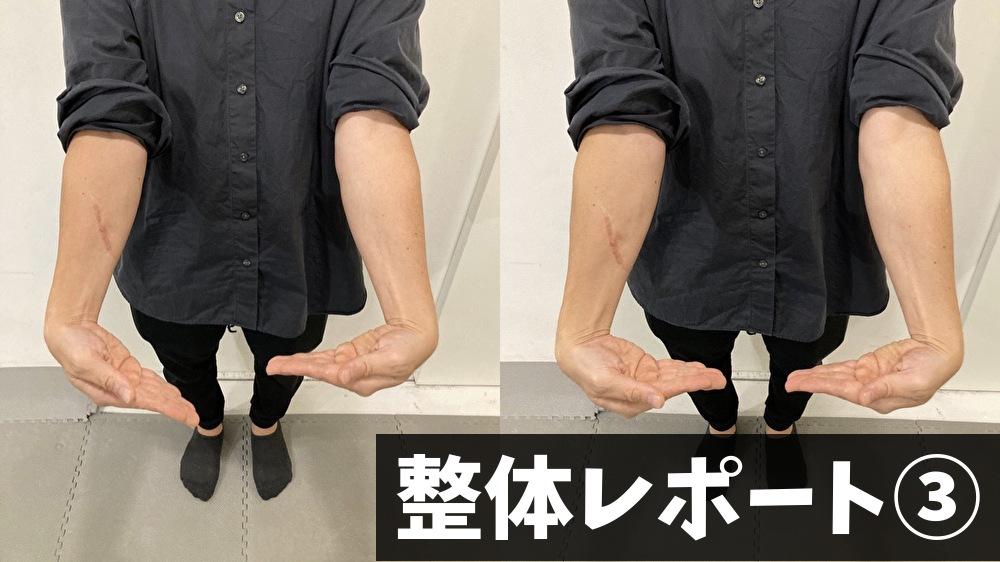 整体で手首の可動域改善
