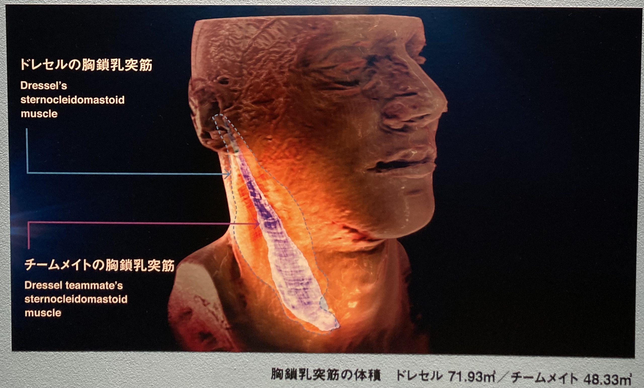 胸鎖乳突筋の秘密